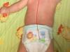 dziecko nieprawidłowo układa się w pozycji leżąc na brzuchu