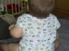 Obniżone napięcie posturalne u 8 miesięcznego niemowlaka i występowanie stopy szpotawej