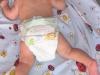 ustawienie nóżek u dziecka z dysplazją bioder