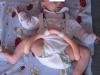 niemowlę z dysplazją bioder