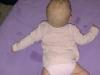 nieprawidłowy podpór u niemowlęcia