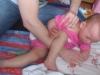 rehabilitacja u rocznej dziewczynki z zespołem kociego krzyku