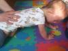 ćwiczenia w czworakach u rocznej dziewczynki z  cri du chat syndrom